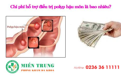 Chi phí hỗ trợ điều trị polyp hậu môn là bao nhiêu?
