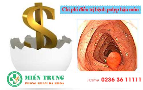 Chi phí điều trị bệnh polyp hậu môn tại Đà Nẵng hết bao nhiêu tiền?