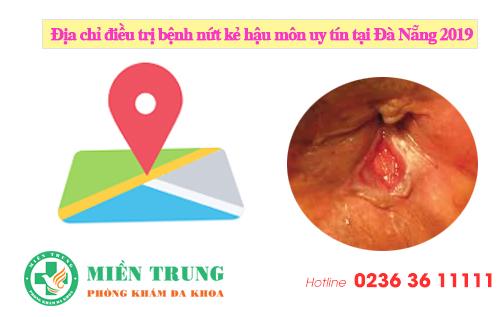 Địa chỉ điều trị bệnh nứt kẻ hậu môn uy tín tại Đà Nẵng 2020