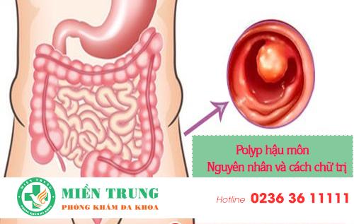 Nguyên nhân gây ra bệnh polyp hậu môn và cách chữa trị hiệu quả